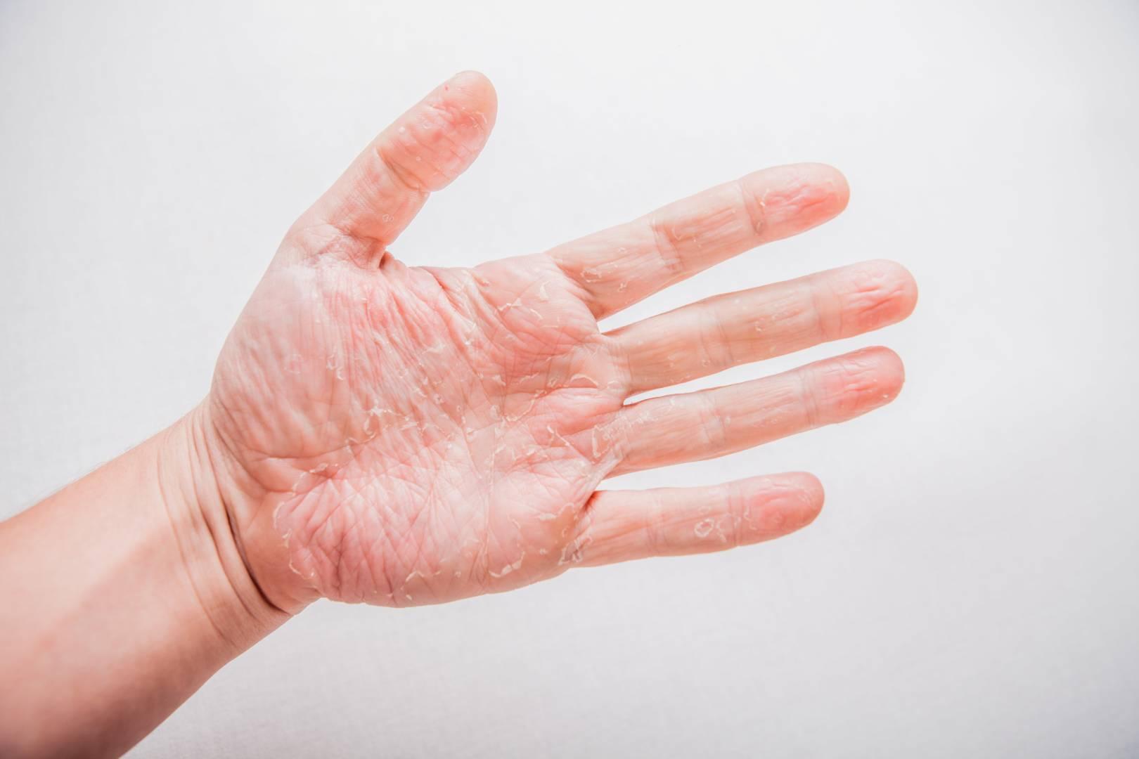 Etude sur l'eczéma chronique des mains