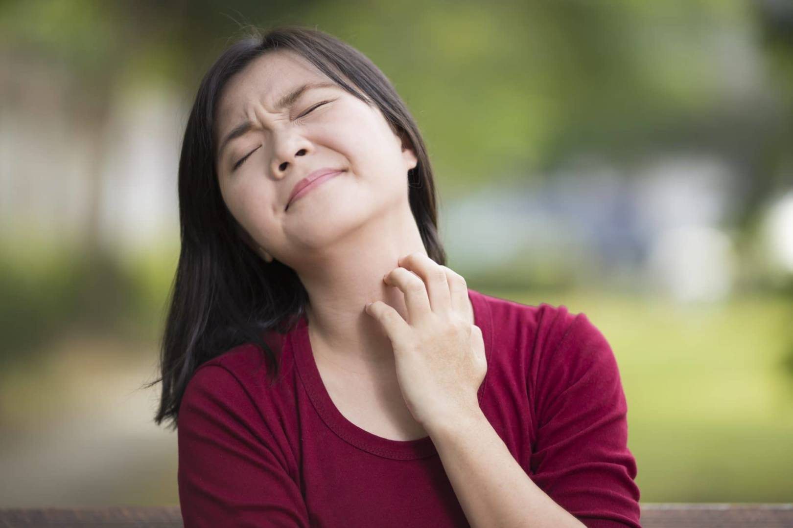 Histoire de la Dermatite Atopique