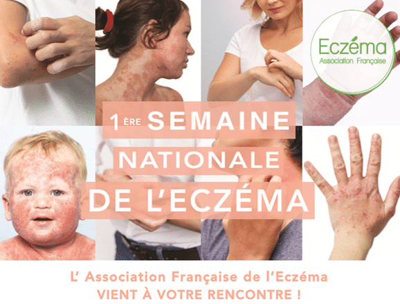semaine nationale eczema