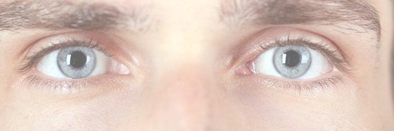 eczema du visage