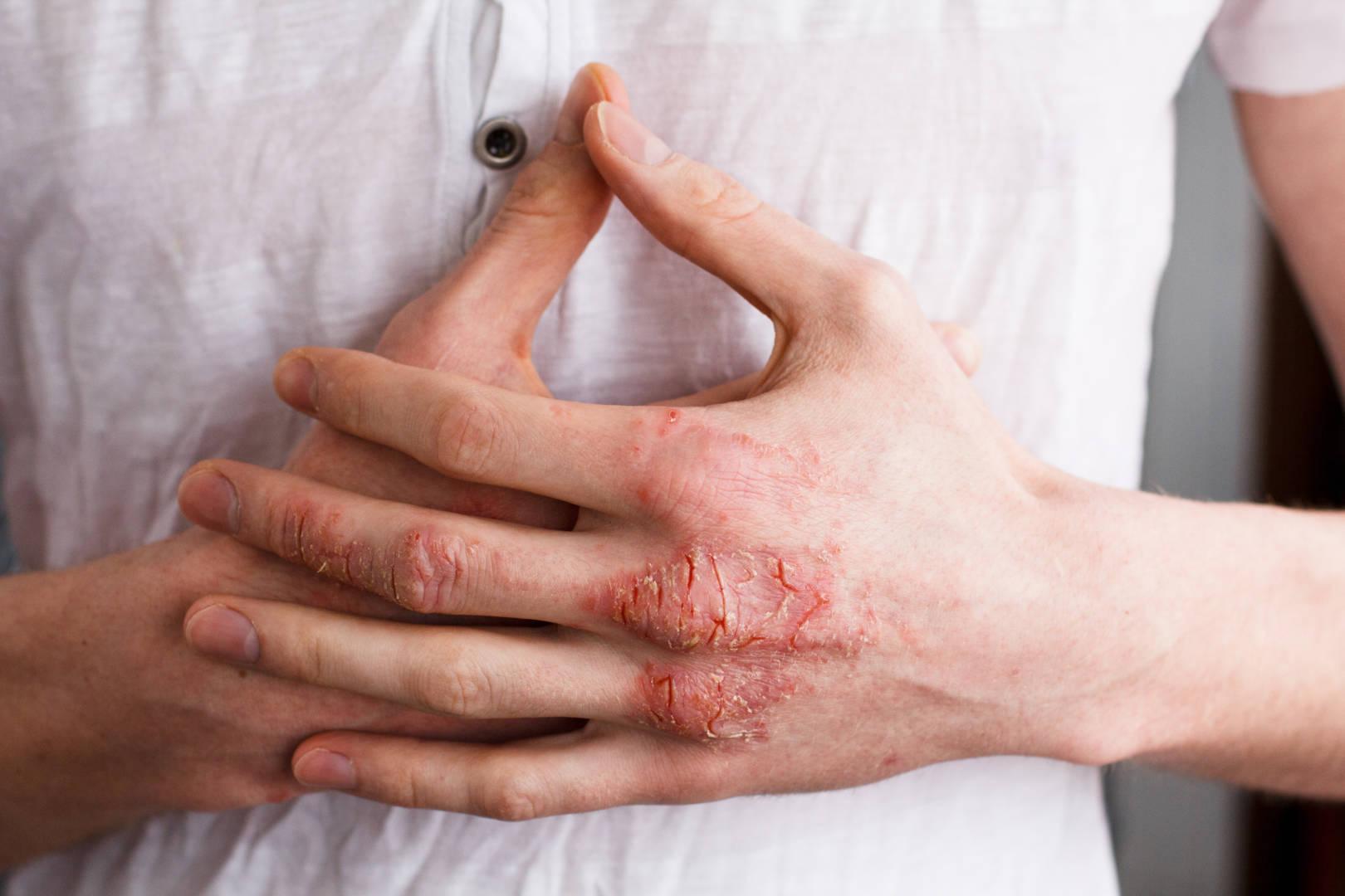 eczéma et lavage des mains
