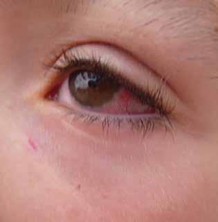 kératoconjonctivitKératoconjonctivite allergiquee