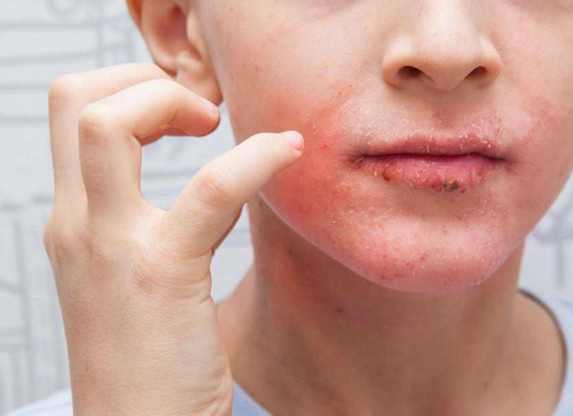 eczema de la bouche